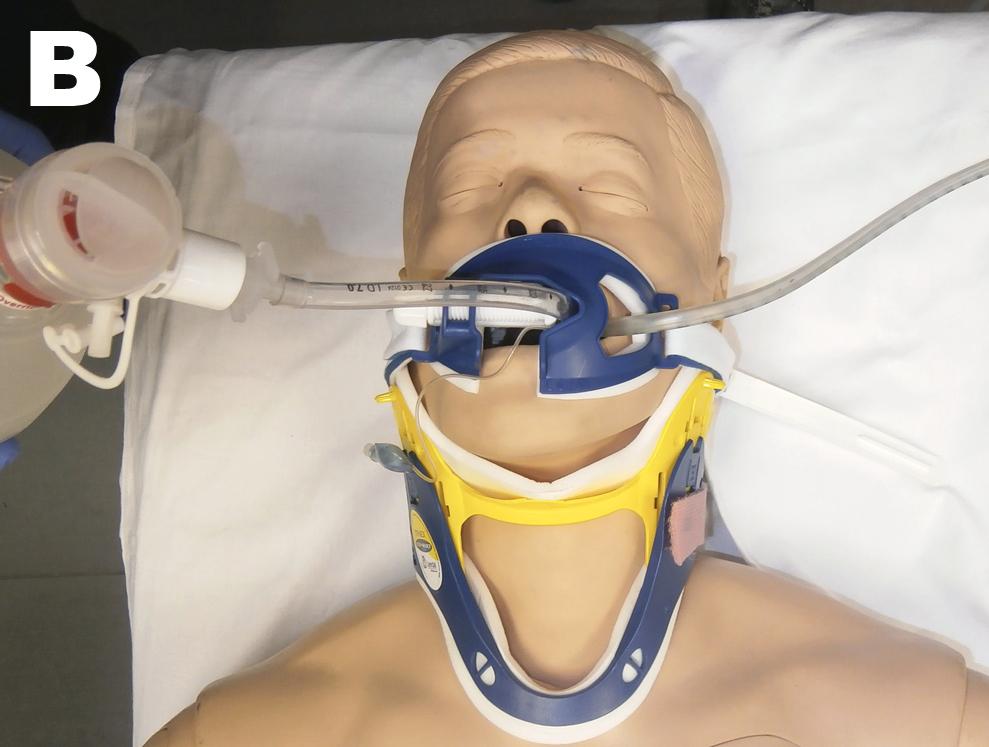 Intubación endotraqueal