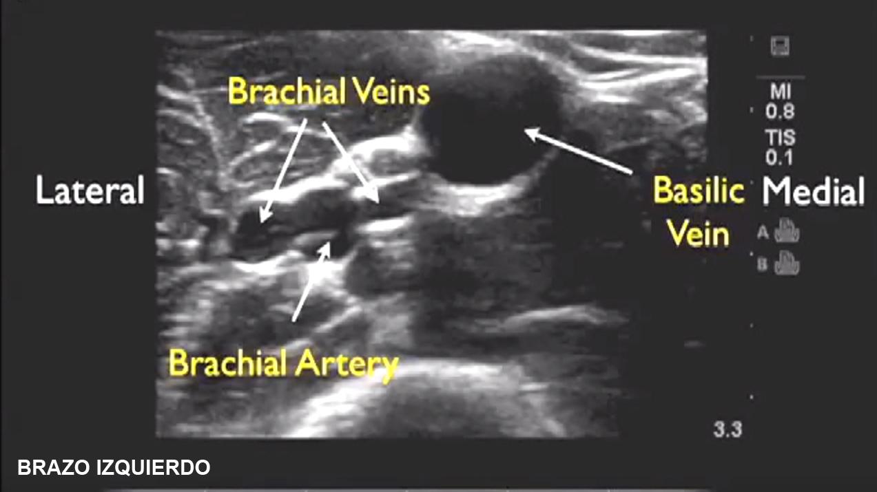 Canalización de vías venosas periféricas guiada por ecografía